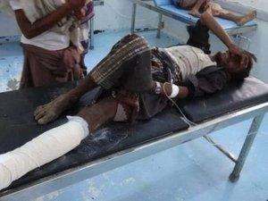 إصابة-مواطن-في-انفجار-لغم-حوثي-وتدمير-سيارته-غربي-اليمن